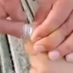 指から抜けなくなってしまった指輪を簡単に抜き取る方法